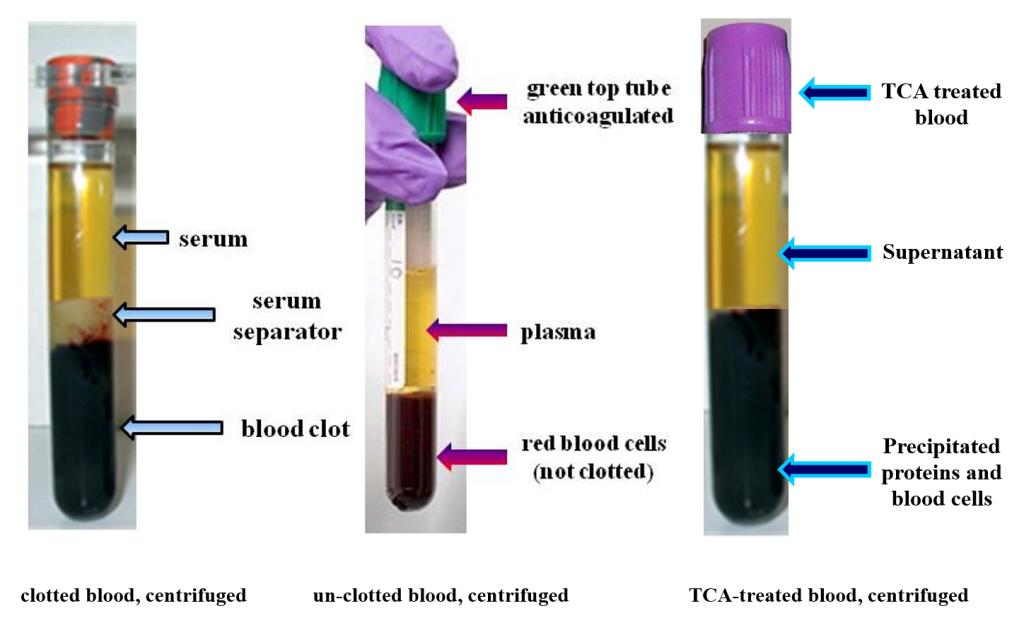 centrifuged blood samples