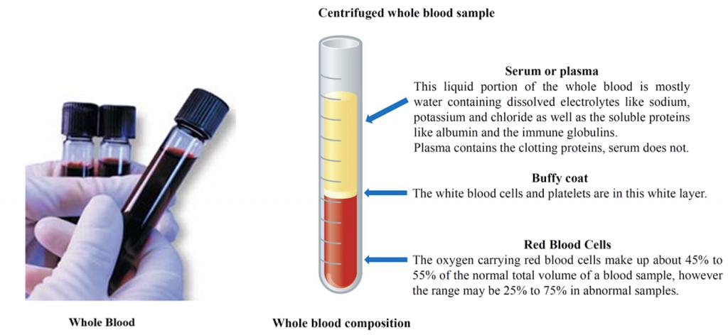 centrifuged whole blood sample